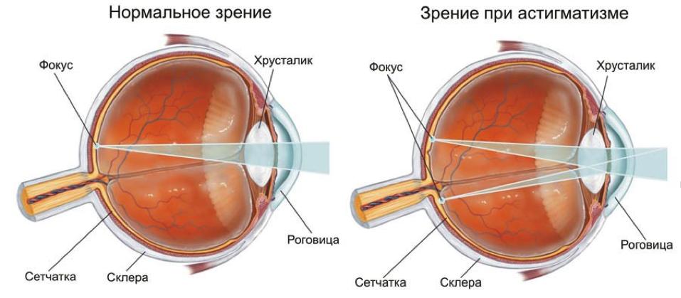 Как восстановить зрение после очков